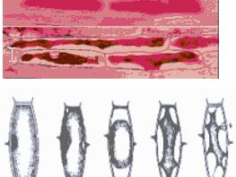 Πλασμόλυση Φυτικών Κυττάρων